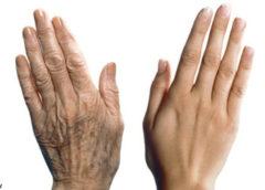 6 гормонов, из-за которых женское тело стареет быстрее, чем должно